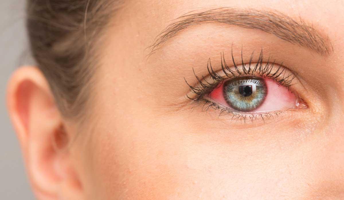 10 إرشادات تساعدك على علاج احمرار العين بفعالية وأمان